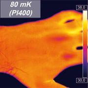 PI400 hand thermal image